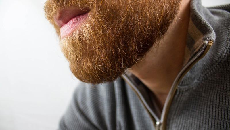 Irre: Ausfall wegen Bart-Transplantation