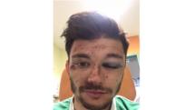 Schock-Verletzung in der Landesliga